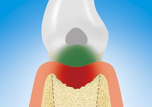 Der Kieferknochen, sowie die Zahnwurzel sind stark von den Bakterien angegriffen. Es ist eine Parodontitis geworden.