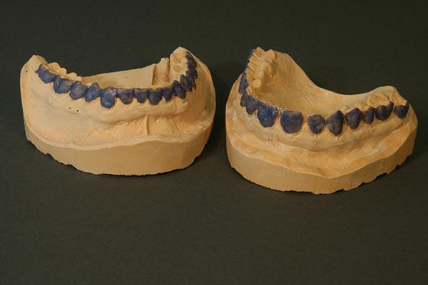 Gipsmodelle vom Ober- und Unterkiefer eines Patienten für Schienenherstellung zur Zahnaufhellung