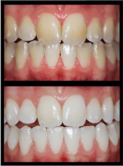 Vergleiche eines Gebiss vor und nach dem Bleaching. Vor dem Bleaching stark gelb verfärbte Zähne. Nach dem Bleaching strahlend weiße Zähne.