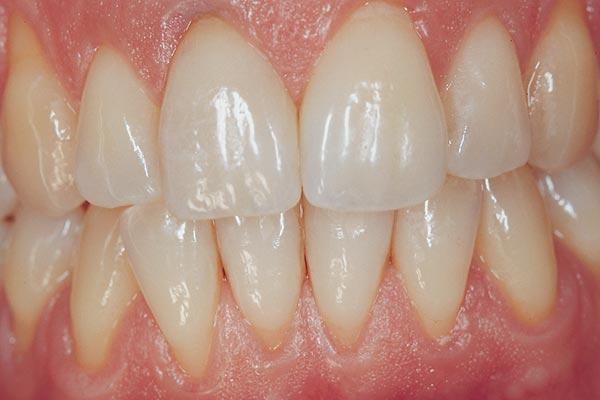 Strahlend wieße Zähne nach Bleaching