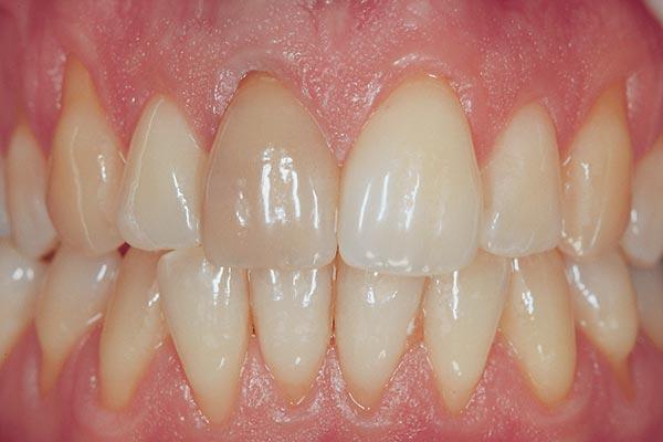 Aufnahme eines Gebiss mit stark gelb verfärbten Zähnen vor dem Bleaching
