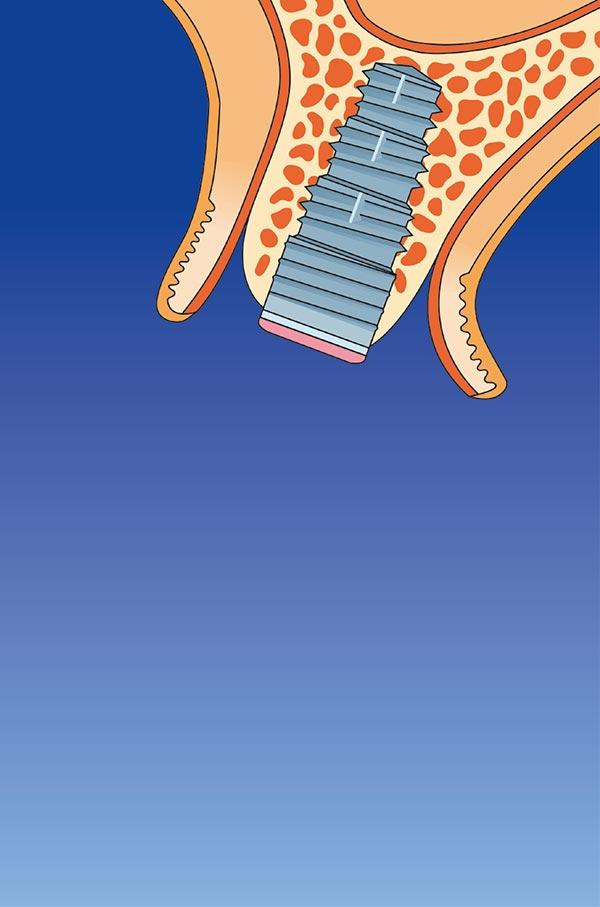 In den Kieferknochen geschraubter Implantatkörper mit aufgeklapptem Zahnfleisch