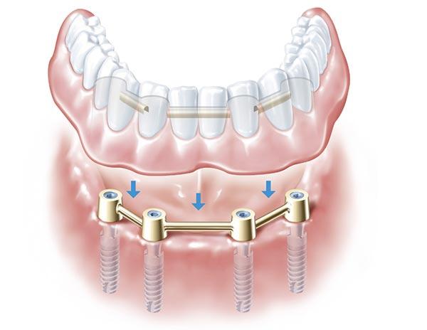 Prothese mit Führungsschienen wird von vier Implantaten auf deren Verbindungen gehalten