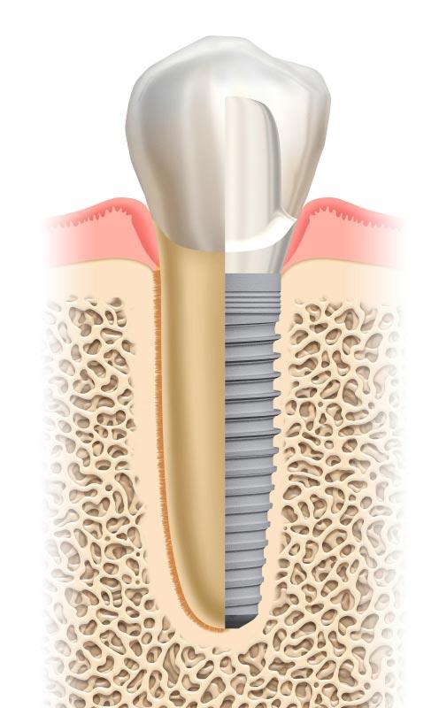 Der Aufbau des Implantats orientiert sich an dem einer Zahnwurzel und eines Zahns