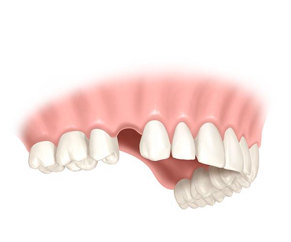 Ersatz eines einzelnen Zahnes