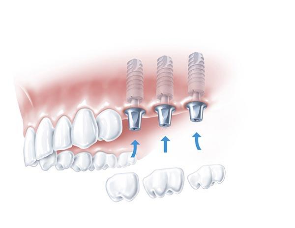 Implantatkronen in Form von Backenzähnen werden auf den Implantatkörper gesteckt