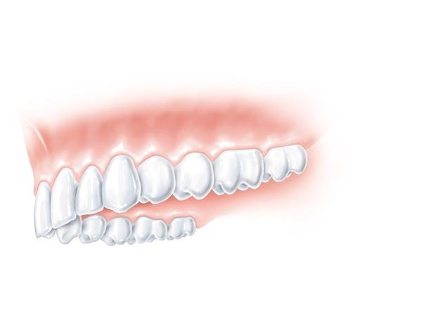 Implantate vervollständigen den Oberkiefer restlos