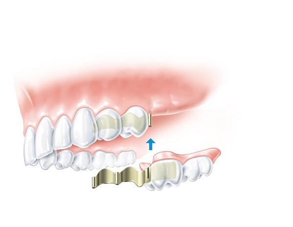 Zahnersatz wird mit an anderer befestigen Zähnen fixierte Schienensystem gehalten