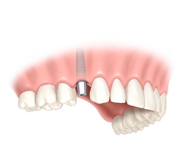 Implantat wird in die Stelle des fehlenden Zahns gesetzt