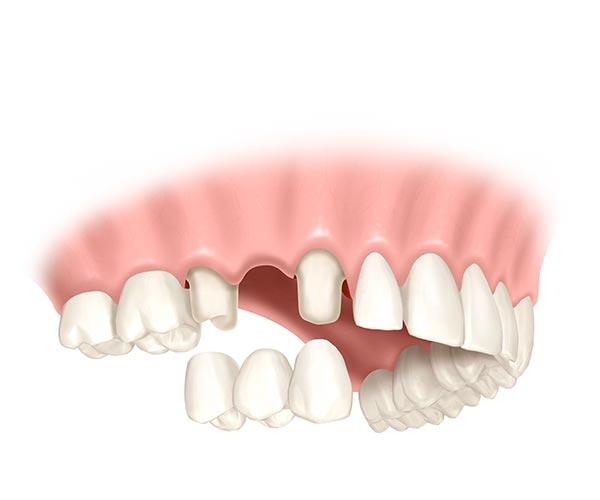 Zähne neben der Lücke werden abgeschliffen um als Halterung einer aus drei Zähne bestehenden Brücke zu dienen