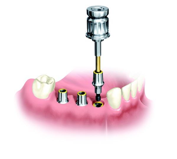 Ersatz mehrerer Zähne