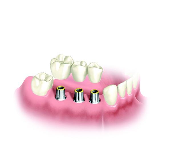 Implantatkrone aus drei Zähnen wird auf den Implantatkörper gesetzt