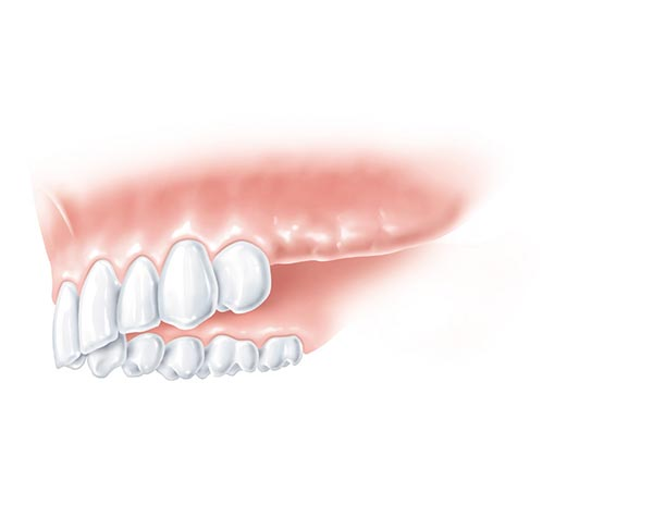 Zahnloser Teil im linken hinteren Bereich des Oberkiefers