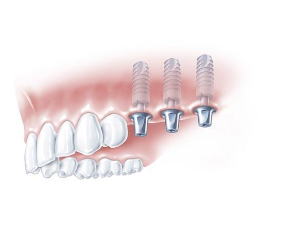 Drei Implantkörper im linken hinteren Bereich des Oberkiefers auf die Zahnkronen gesetzt werden sollen
