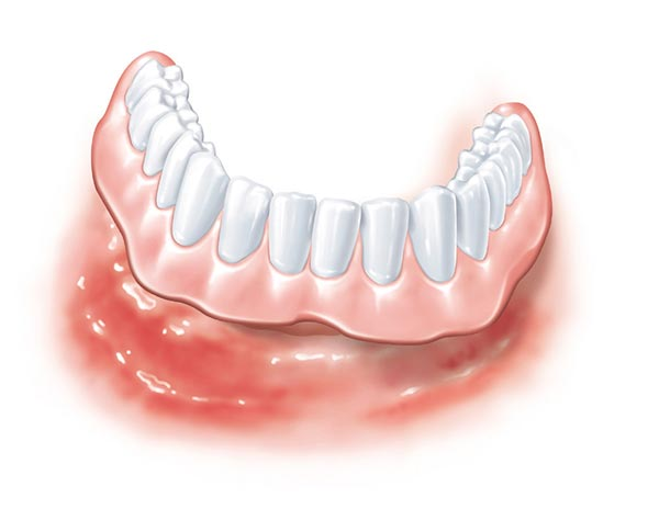 Zahnloser Kiefer