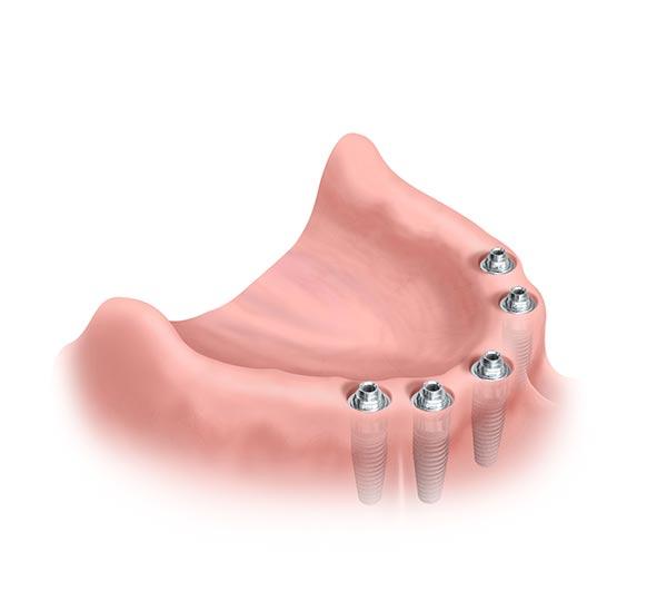 fester Zahnersatz