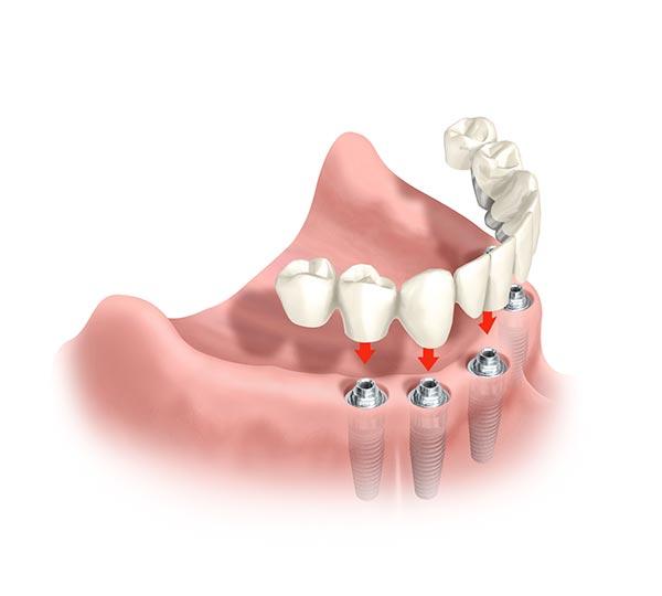 In Form einer Schiene wird der Zahnersatz auf Implantate gesetzt