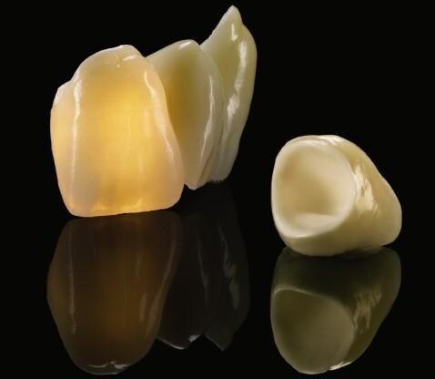 Zahnersatz Vollkeramik