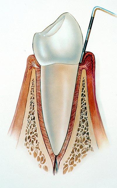 Gesunde Zahnwurzel ohne Parodontitis