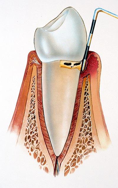 Durch Parodontitis verursachte Schäden direkt unter dem Zahn an der Zahnwurzel die jedoch noch therapiebar sind