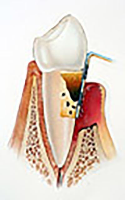 Dreiviertel von der Wurzel des Zahns ist aufgrund von Paradontitis verschwunden und muss sehr wahrscheinlich entfernt werden
