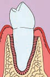Zahnhals nach erfolgreicher Parodontologie vollkommen umschlossen von Knochen und Zahnfleisch