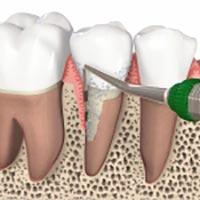 Am Zahn werden sanft Zahnstein und Beläge entfernt