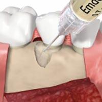 Das Zahnschmelzmatrixprotein wird in den geschaffenen Räume unter dem Zahn eingespritzt