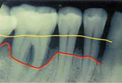 Röntgenbild der Backenzähne mit gelber Linie wo Zahnfleisch sein sollte und weit darunter liegender, roter Linie wo Zahnfleisch ist