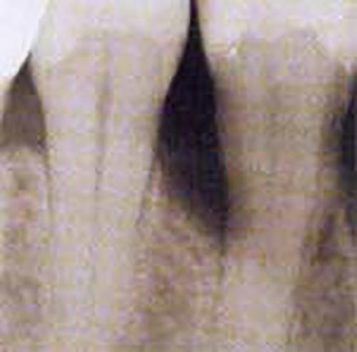Röntgenbild zeigt freigelegte Zahnwurzel vor der parodontologischen Behandlung