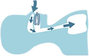 Durch die Schnarchschiene wird der Unterkiefer vorn und die Atemwege frei gehalten