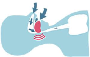 Durch entspannte Kieferposition und zurückfallende Zunge werden Atemwege verengt oder verschlossen wodruch der Patient schnarcht