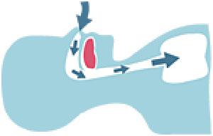 Durch die normale Unterkieferposition sind die Atemwege uneingeschränk