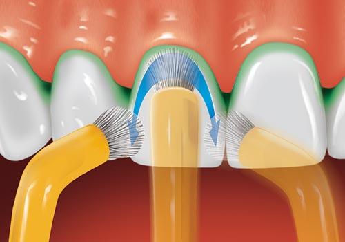 Mit der SOLO Brüste wird die gesamte, nach vorn gerichtete Zahnoberfläche gründlich gereinigt.