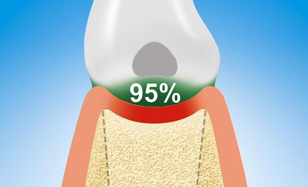 95% der Parodontitits befinden sich direkt unter dem Zahn am Zahnhalteapparat