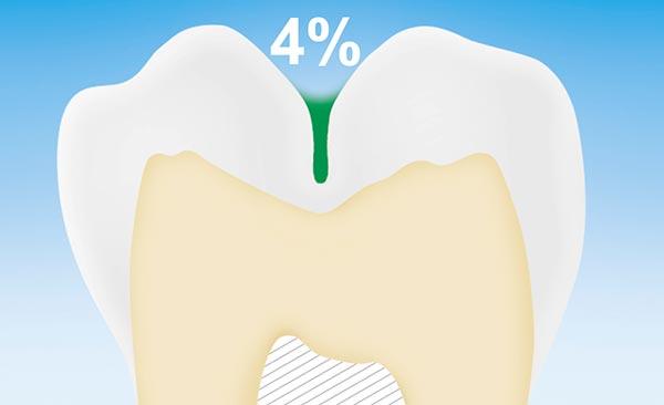 4% der Kariesbakterien befinden sich in tiefen Tälern der Backenzähne