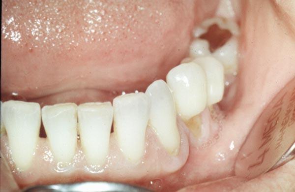 Effekte beim Zähneputzen
