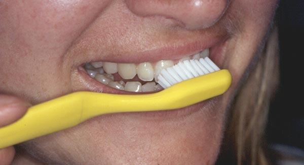 Eine Frau putzt mit einer gelber Zahnbürste ihre Zähne. Sie kommt jedoch nicht in die Zwischenräume der Zähne.
