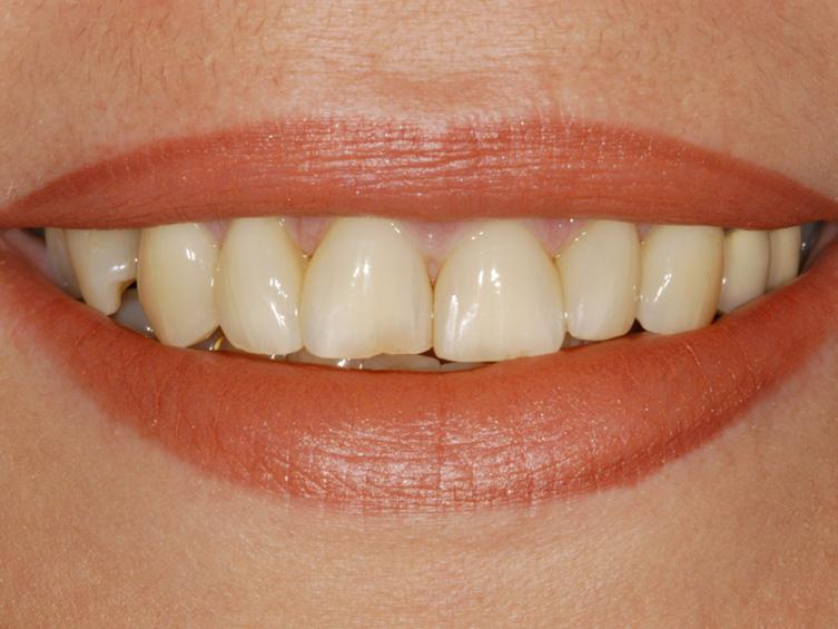 Mit Veneers sind die Folgen des Zahnfleischschwunds nicht zu sehen.