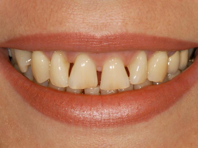 Zahnfleischschwund ist oft die Ursache für unregelmäßige Lücken zwischen den Zähnen