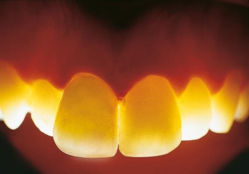 Vollkeramik ist lichtdurchlässig wie ein eigener Zahn
