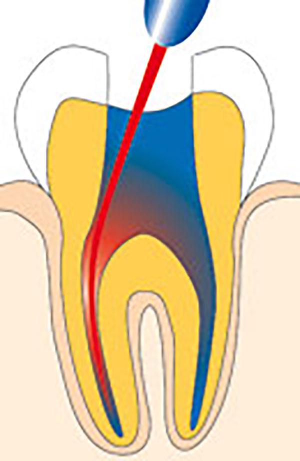 Um einen 100% keimfreien Wurzelkanal gewährleisten zu können, wird abschließend mit einem Laser die Wurzel sterilisiert