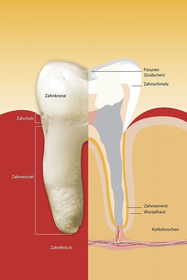Der Wurzelkanal des Zahns wird zum Ende der Wurzelbehandlung mit einer Wurzelfüllung gefüllt