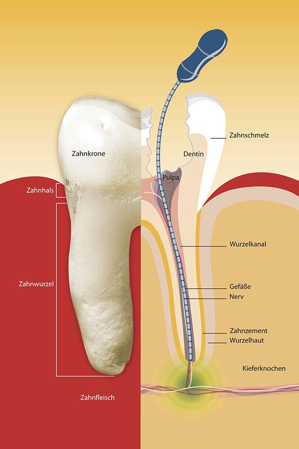 Karies wird mit der Wurzelkanalfeile aus dem Zahnwurzelkanal entfernt