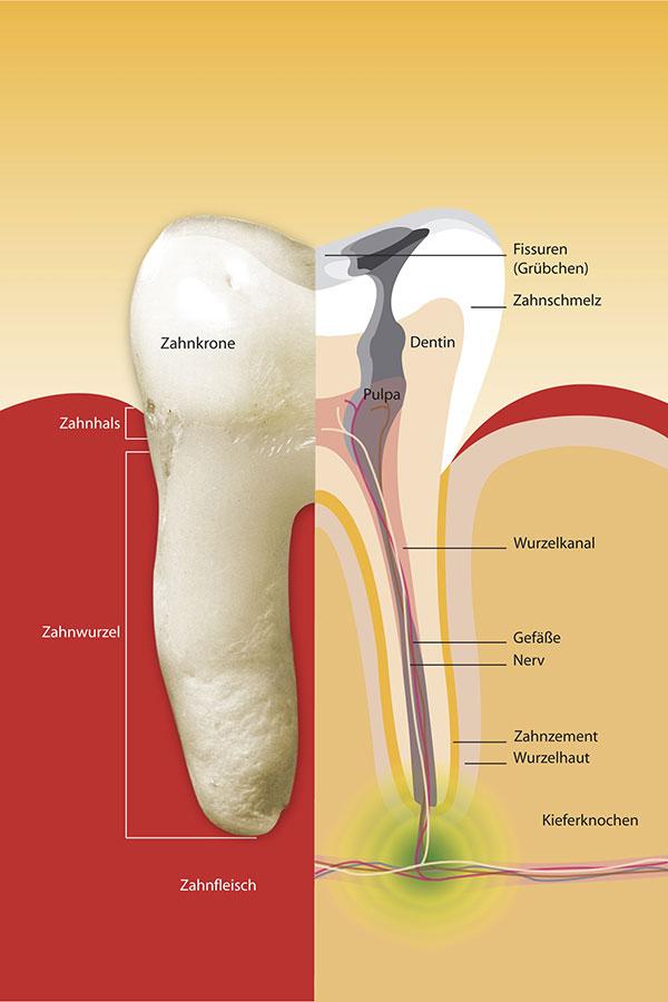 Querschnitt des Zahns zeigt Karies über die gesamte Wurzel